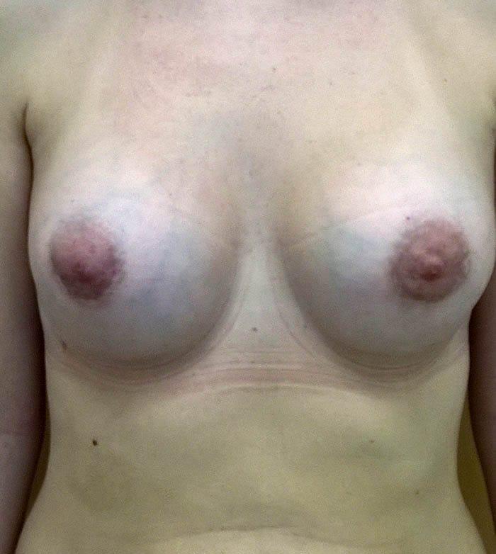 Powiększanie Piersi Implantami 24