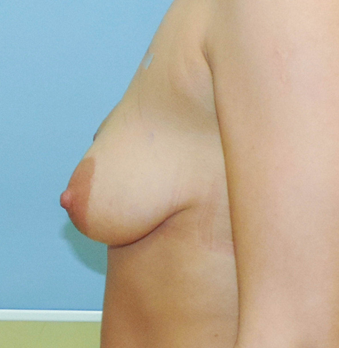 Podniesienie Piersi z Implantami 19