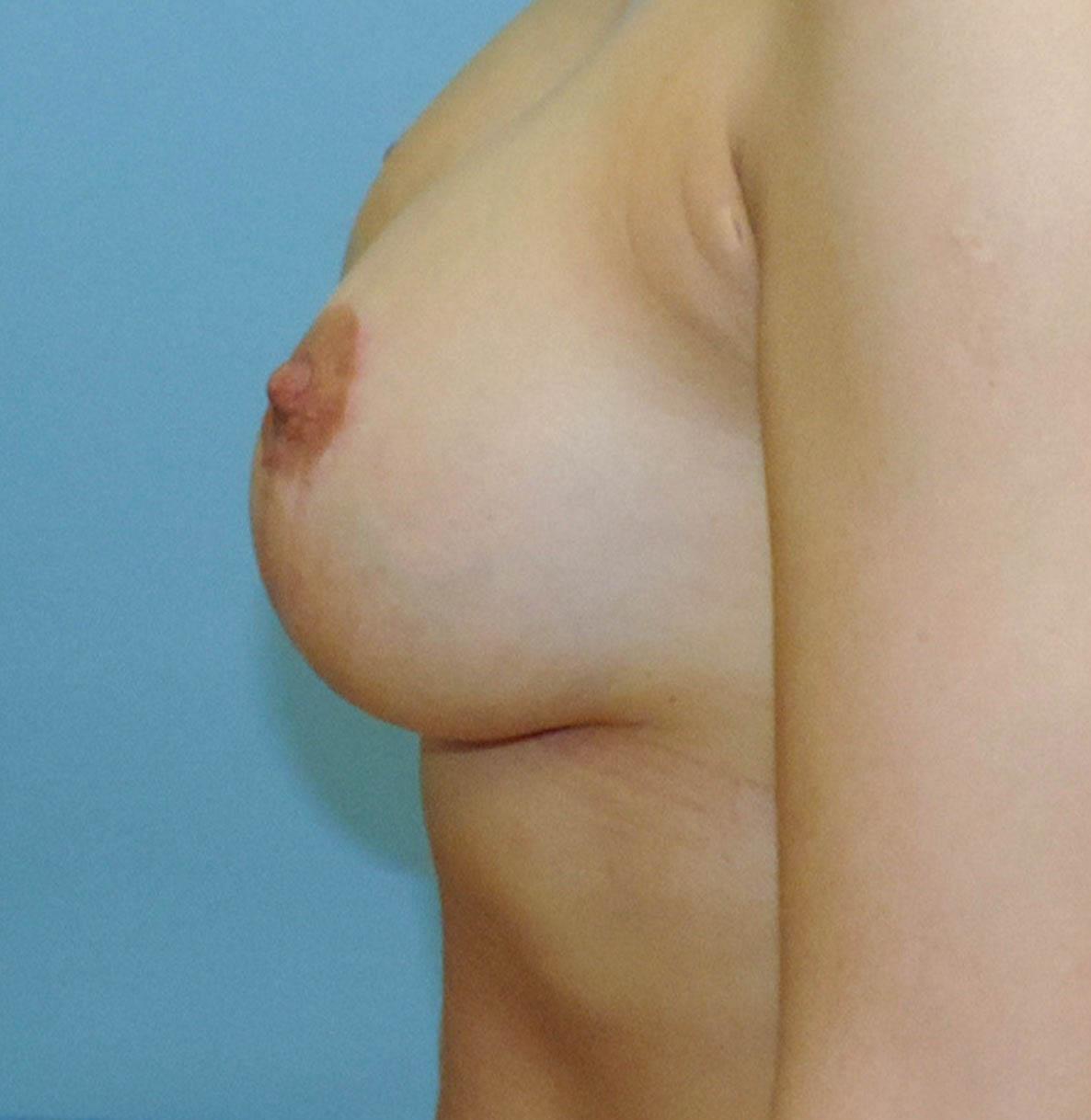 Podniesienie Piersi z Implantami 20