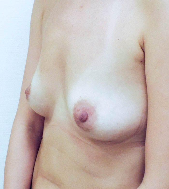 Powiększanie Piersi Implantami 27