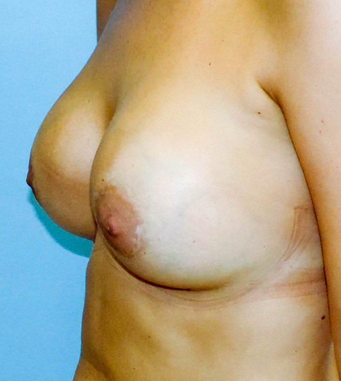 Powiększanie Piersi Implantami 28