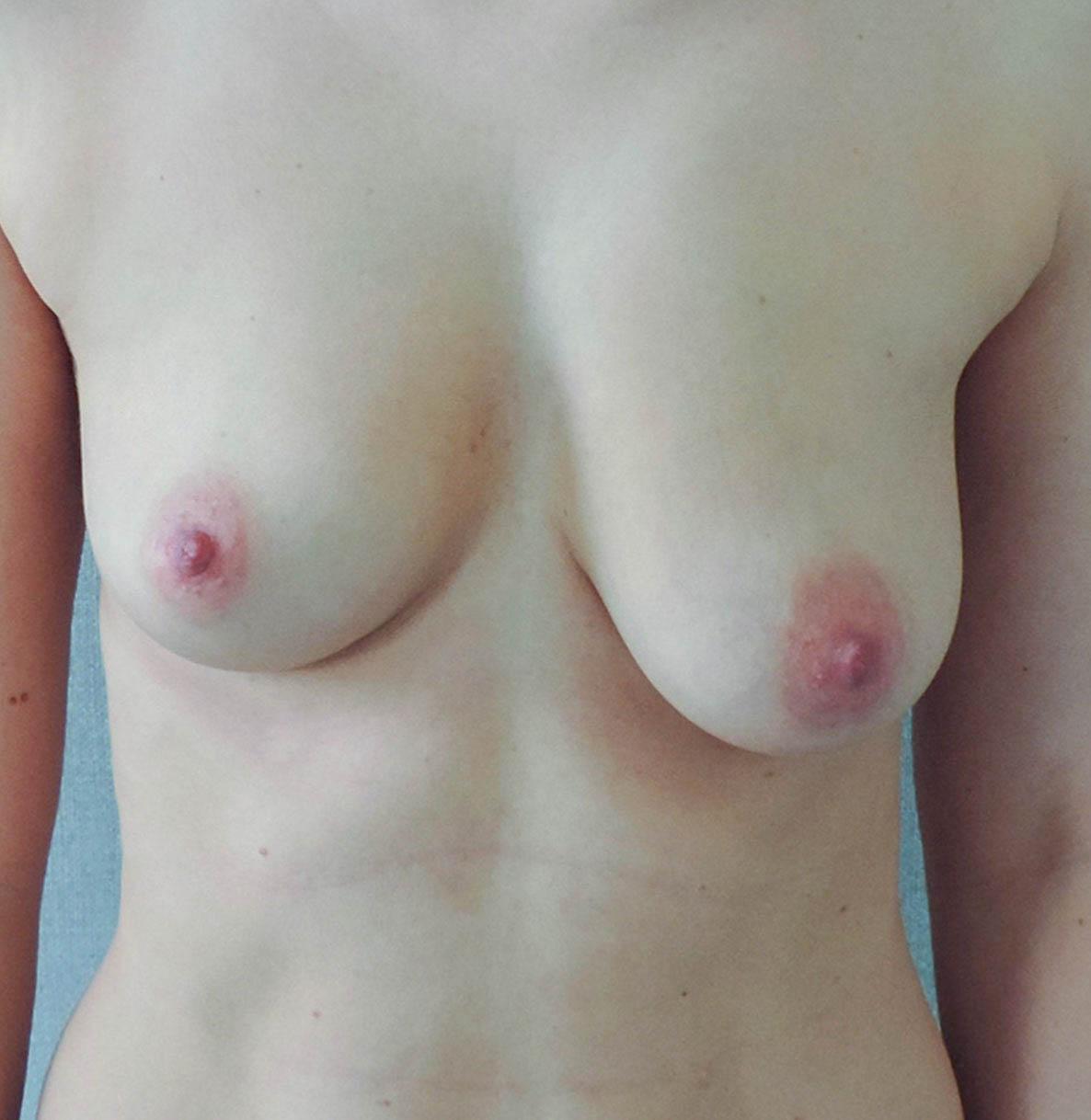 Podniesienie Piersi z Implantami 17