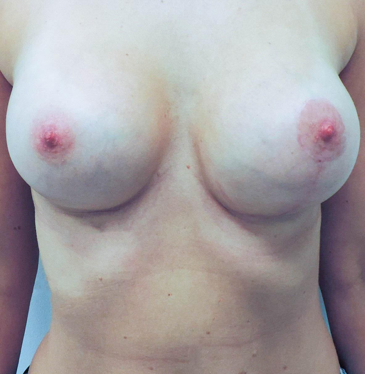 Podniesienie Piersi z Implantami 18