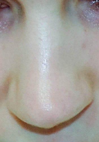 Pełna Korekta Nosa 25