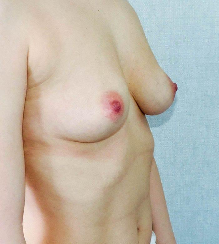 Powiększanie Piersi Implantami 29