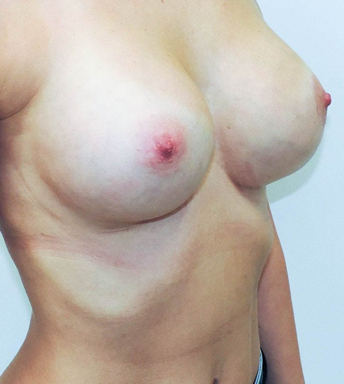 Powiększanie Piersi Implantami 30