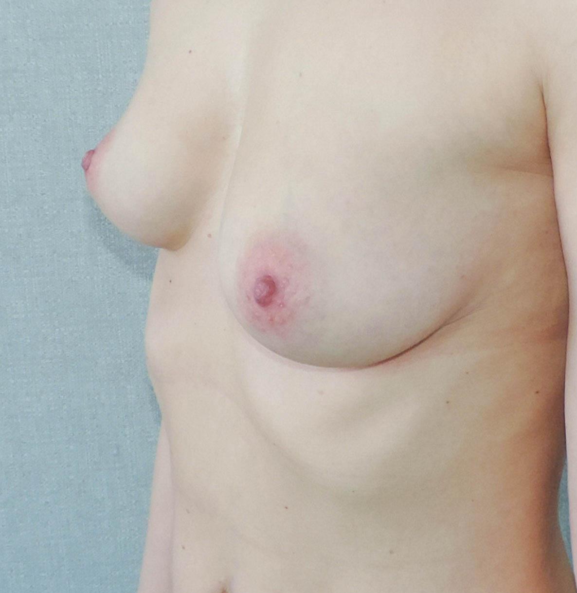 Podniesienie Piersi z Implantami 15