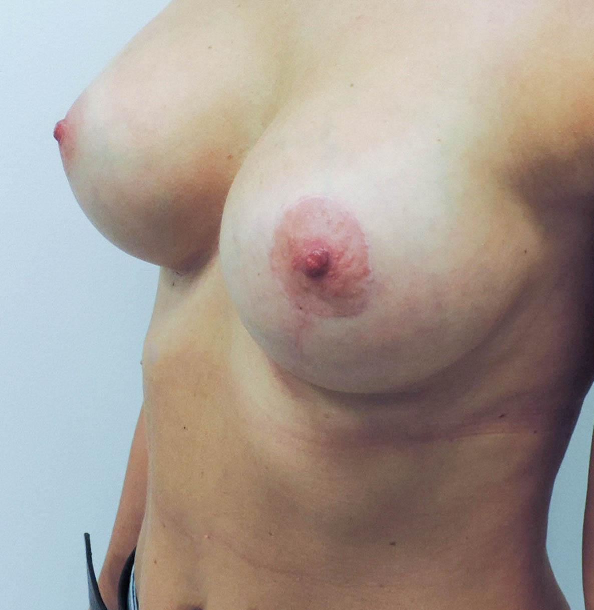 Podniesienie Piersi z Implantami 16