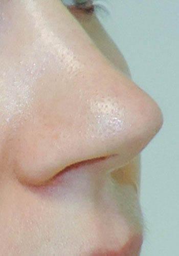 Operacja plastyczna nosa 27