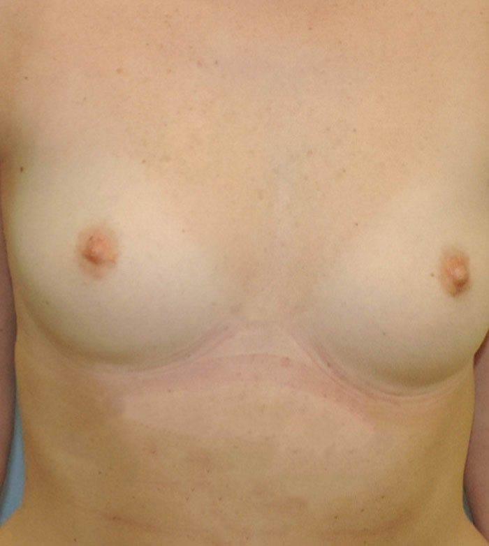 Powiększanie Piersi Implantami 31