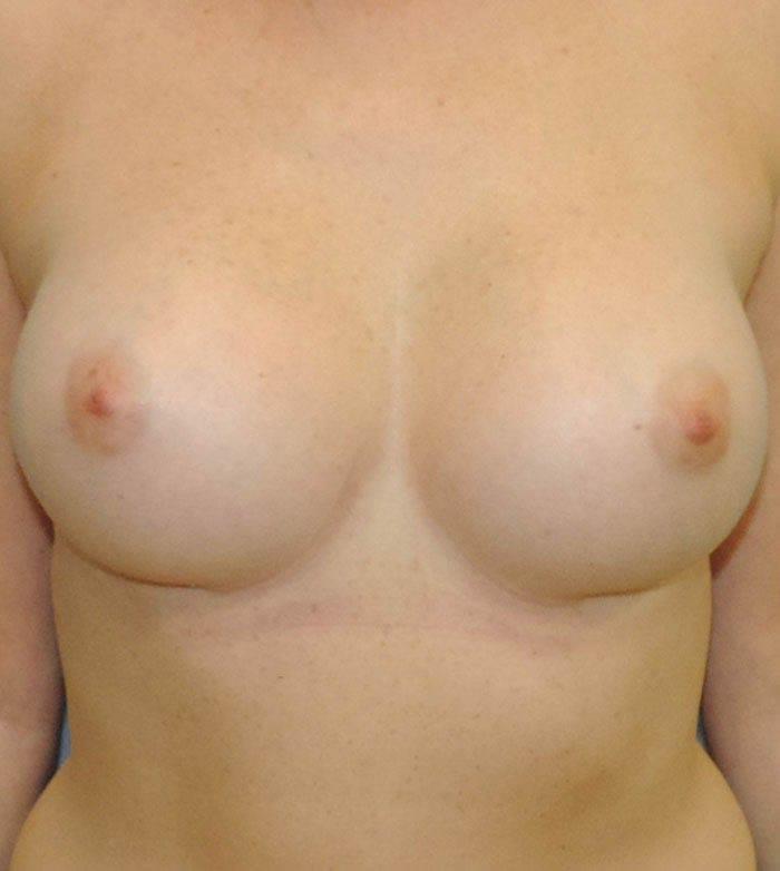 Powiększanie Piersi Implantami 32