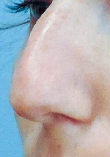 Operacja plastyczna nosa 29