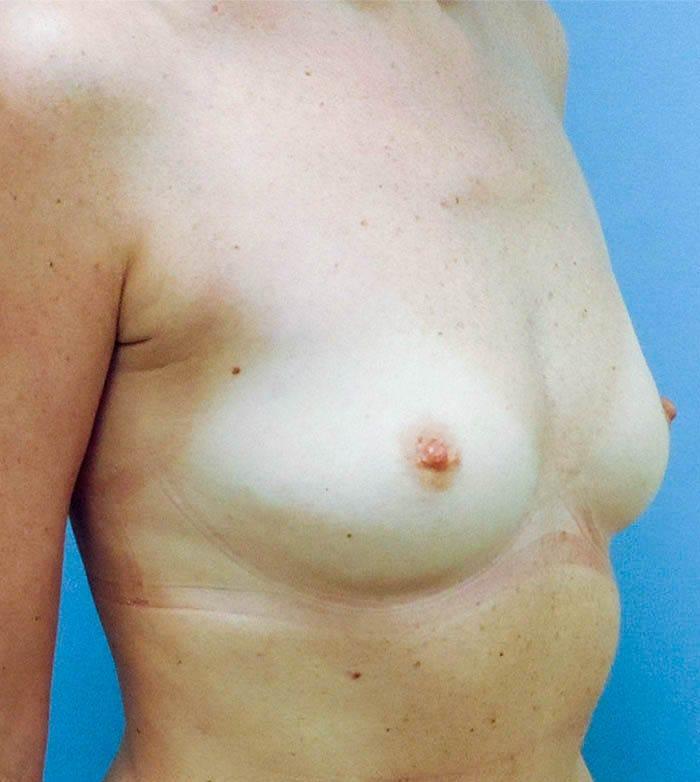 Powiększanie Piersi Implantami 35