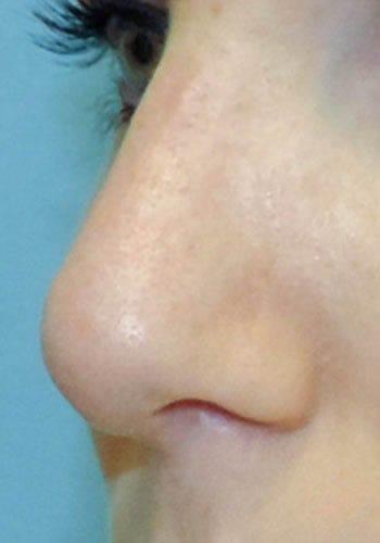 Operacja plastyczna nosa 30