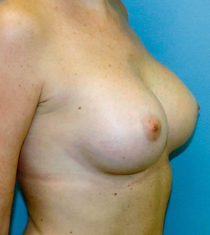 Powiększanie Piersi Implantami 36