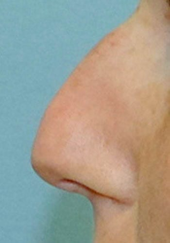 Operacja plastyczna nosa 31