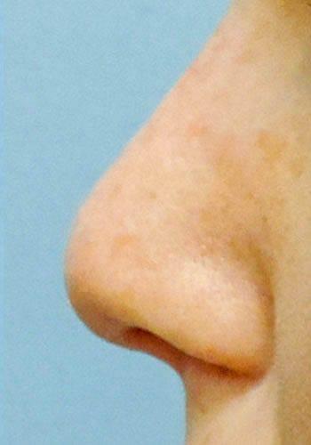 Pełna Korekta Nosa 32