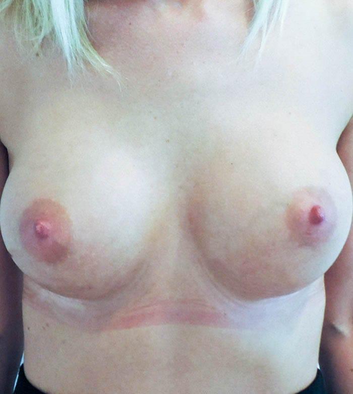 Powiększanie Piersi Implantami 38