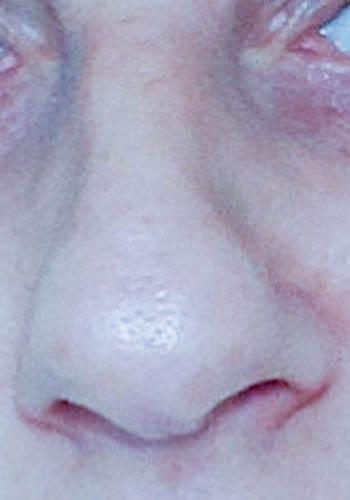 Operacja plastyczna nosa 33