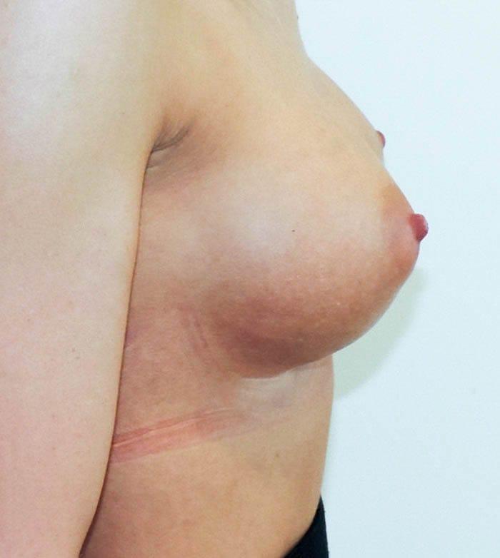 Powiększanie Piersi Implantami 40