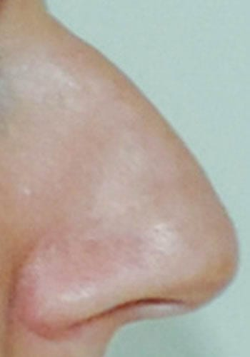 Operacja plastyczna nosa 35