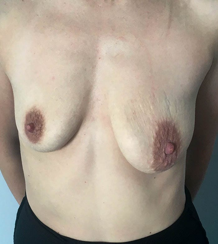 Powiększanie Piersi Implantami 9