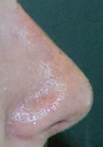 Pełna Korekta Nosa 36
