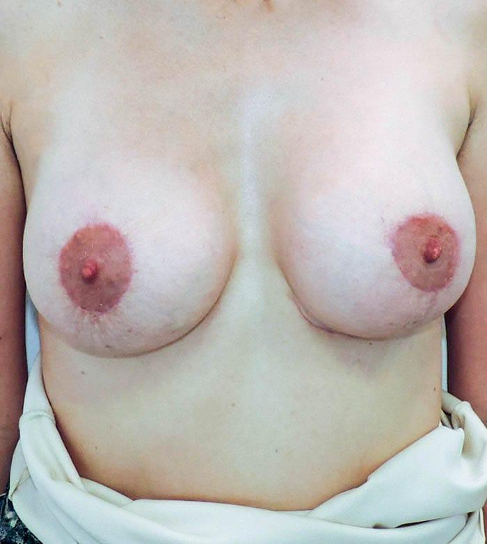 Powiększanie Piersi Implantami 10