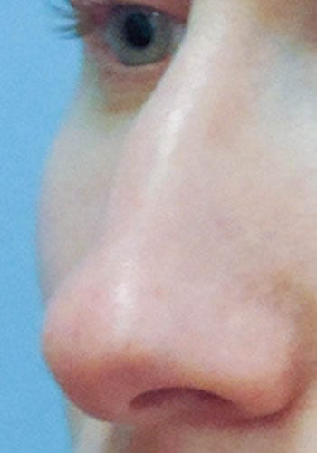 Operacja plastyczna nosa 37