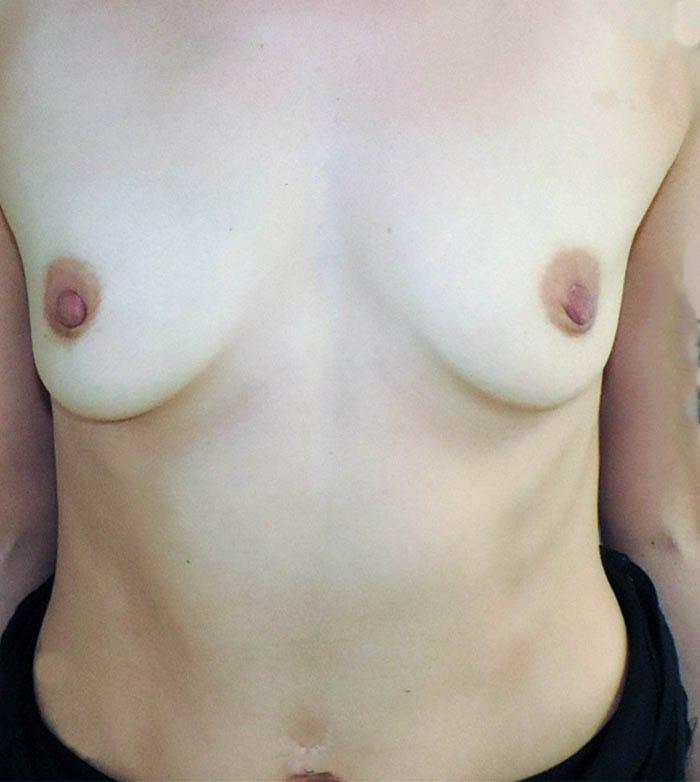 Powiększanie Piersi Implantami 25