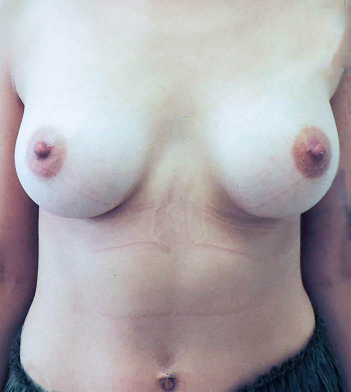 Powiększanie Piersi Implantami 26