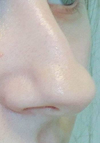 Pełna Korekta Nosa 3