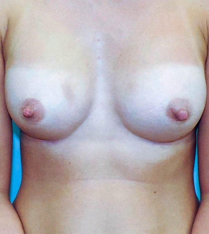 Powiększanie Piersi Implantami 4