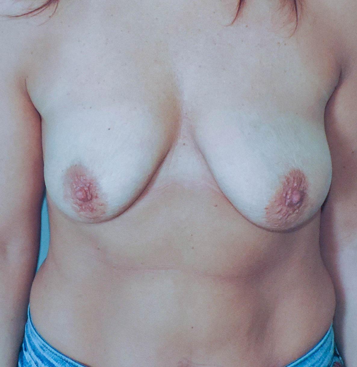 Podniesienie Piersi z Implantami 3