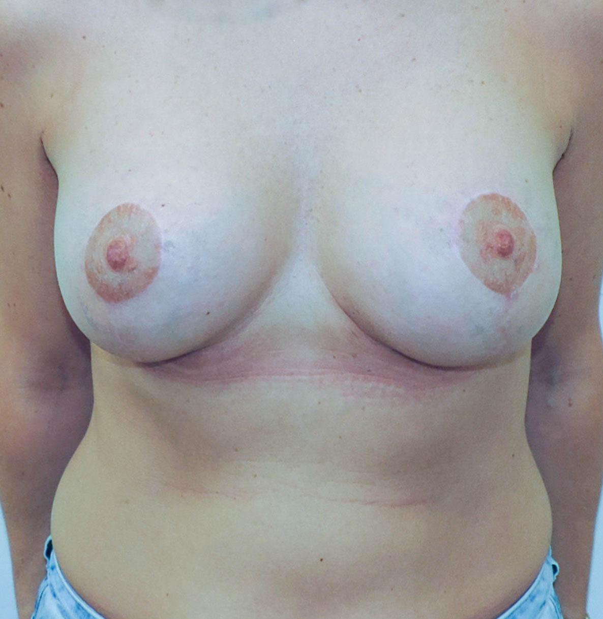 Podniesienie Piersi z Implantami 4