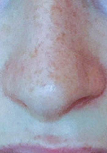 Operacja plastyczna nosa 41
