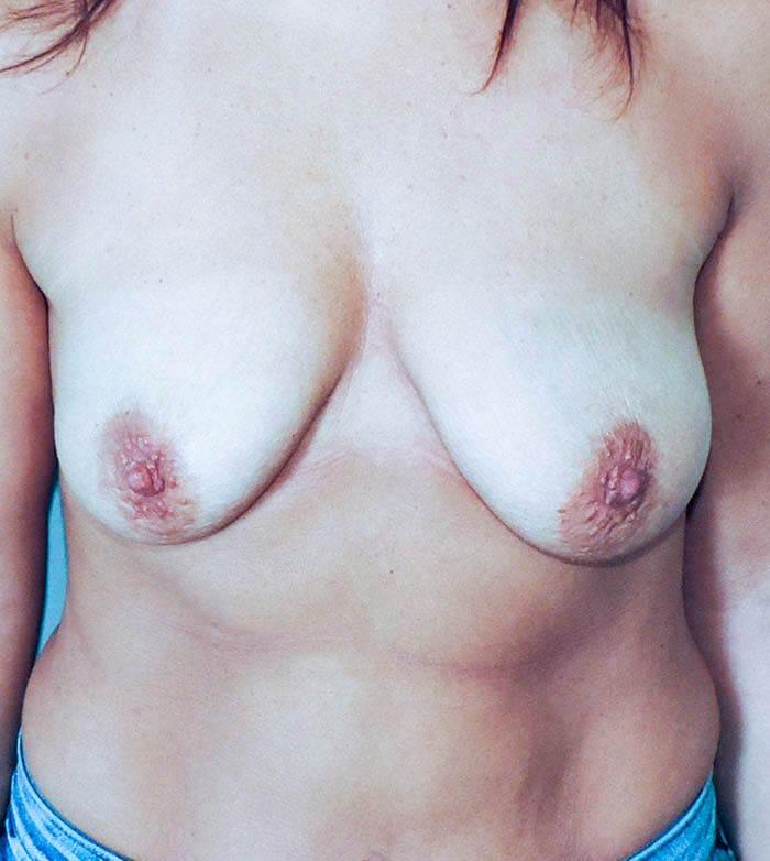 Powiększanie Piersi Implantami 33