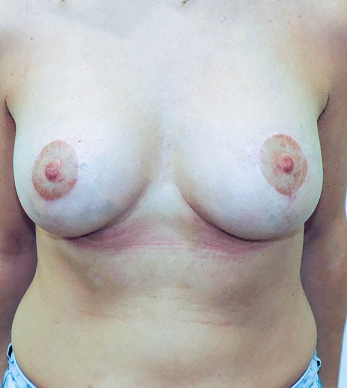Powiększanie Piersi Implantami 34