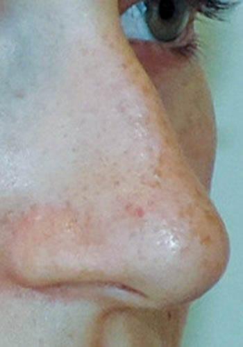 Operacja plastyczna nosa 43