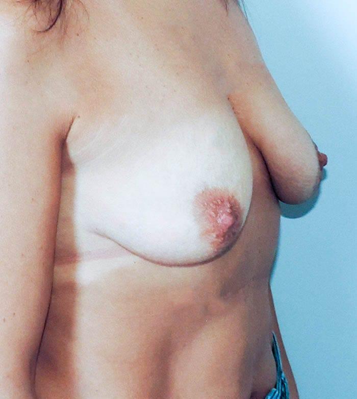 Powiększanie Piersi Implantami 41