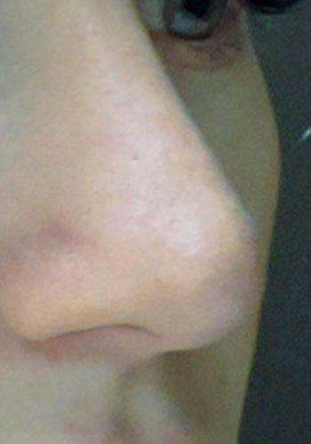 Operacja plastyczna nosa 44