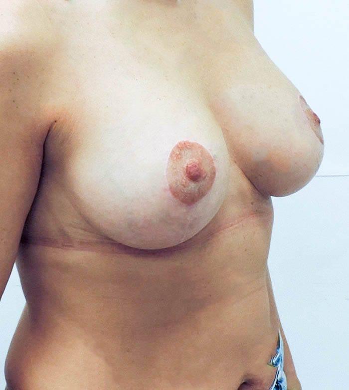 Powiększanie Piersi Implantami 42