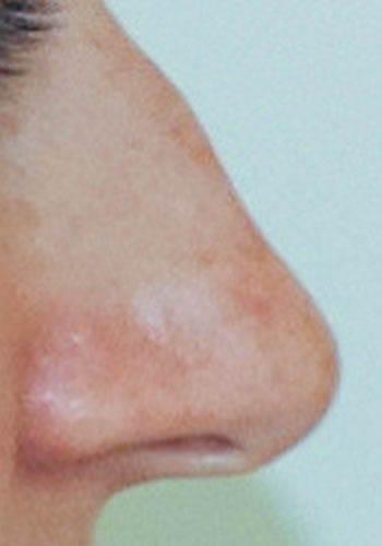 Pełna Korekta Nosa 45