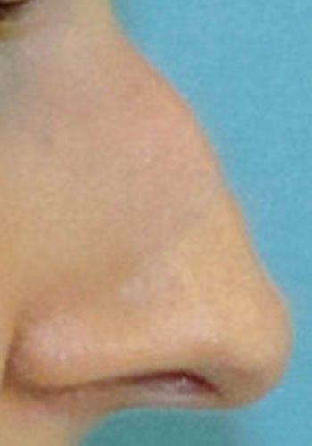Operacja plastyczna nosa 53
