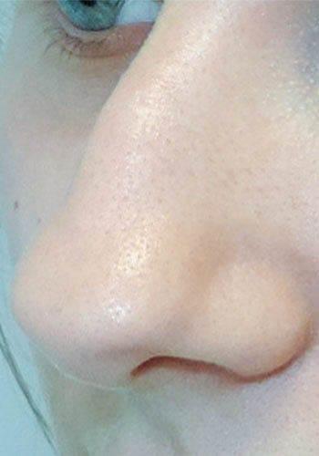 Pełna Korekta Nosa 5