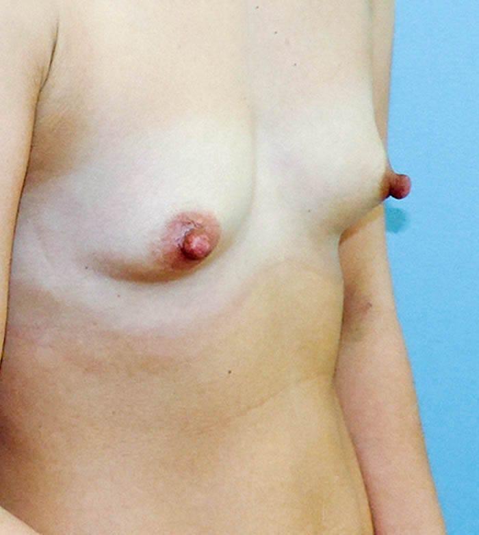 Powiększanie Piersi Implantami 5