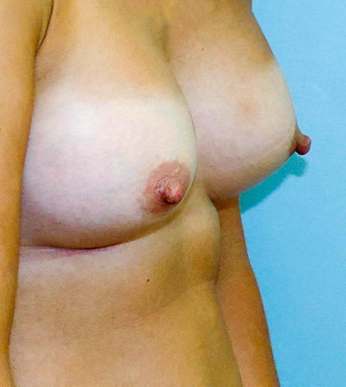 Powiększanie Piersi Implantami 6