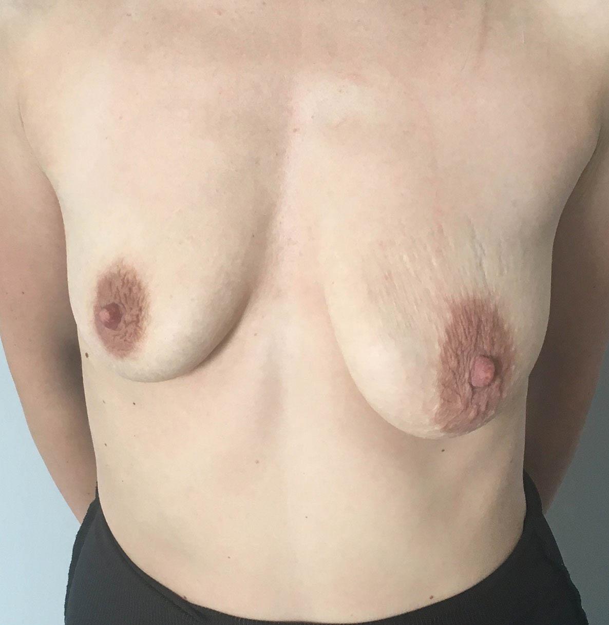 Podniesienie Piersi z Implantami 5