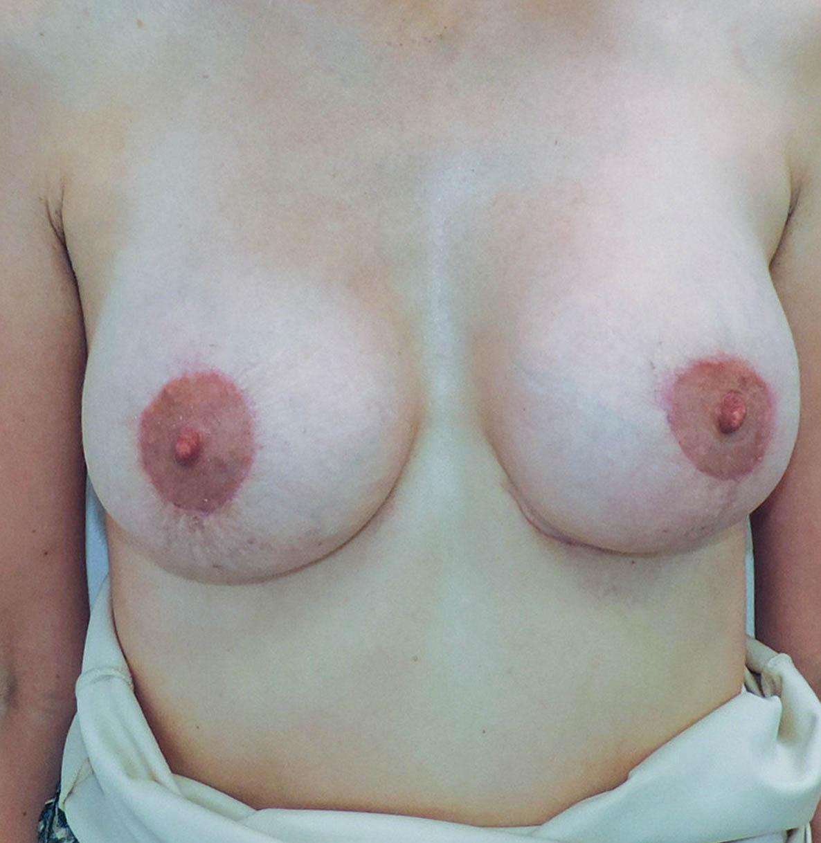Podniesienie Piersi z Implantami 6