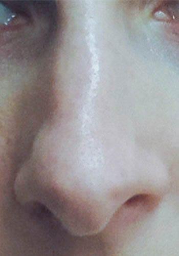 Pełna Korekta Nosa 9